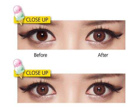 why choose contact lenses 28 images why choose contact
