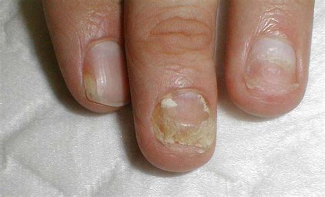 infected nail a practical guide to clinical medicine