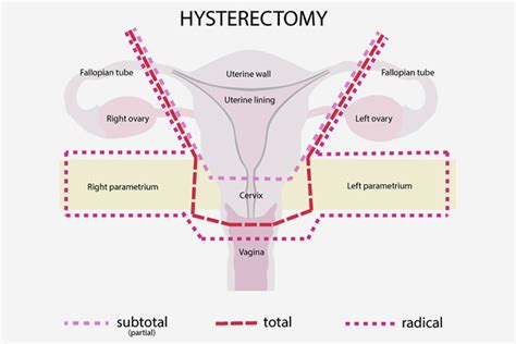 hysterectomy diagram weight gain after total hysterectomy side effects caffeine
