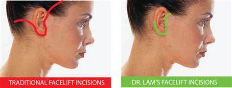 rhytidectomy incision facelift dallas rhytidectomy plano facial plastic
