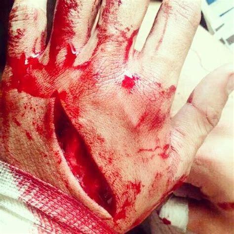imagenes de la justicia herida universidad regional on emaze