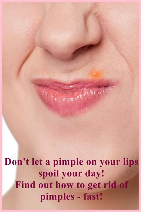Dont Let Traditions Spoil Your Day by If You A Pimple On Your Lip Don T Let It Spoil Your