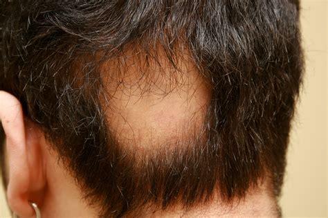 alopecia updos lapat ufsj alopecia areata