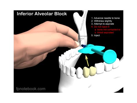 inferioralveolarblock png