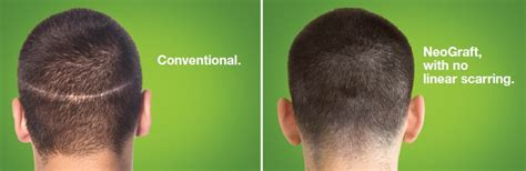 permanent head hair without surgery side effects of a hair transplant itching thinning