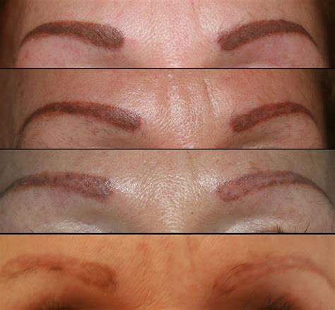 angelina tattoo removal removal exhale rejuvenation