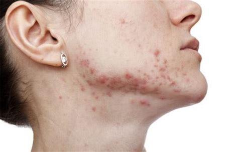 Sun Laser Maron chin with post inflammatory hyperpigmentation