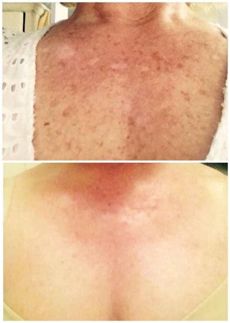 light spots on skin from sun best 25 brown spots on ideas on simple