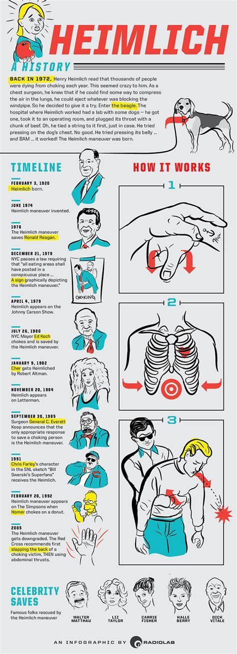 heimlich maneuver when was the heimlich maneuver invented vision launch