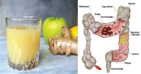 Lemon Juice Detox Diarrhea by Lemon Apple And Mixture That Is Literally Going To