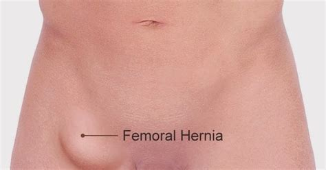 about your hernia inguinal hernia symptoms causes hernia symptoms hernia symptoms newhairstylesformen2014