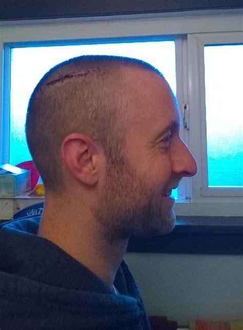 dylan rieder shaved head comedian returns to stage after brutal wash beating ny