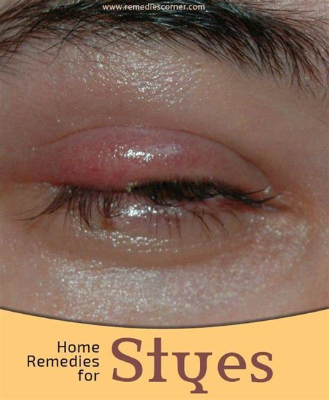 best 25 stye remedy ideas only on stye