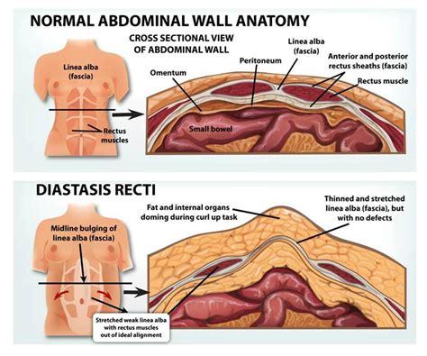 diastasis recti bellies inc