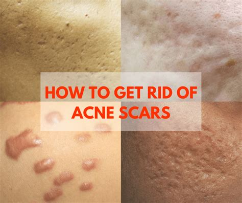 How To Get Rid Of Acne Scars by How To Get Rid Of Acne Scars