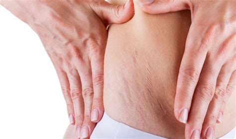 8 ways to reduce stretch marks after weight loss way to