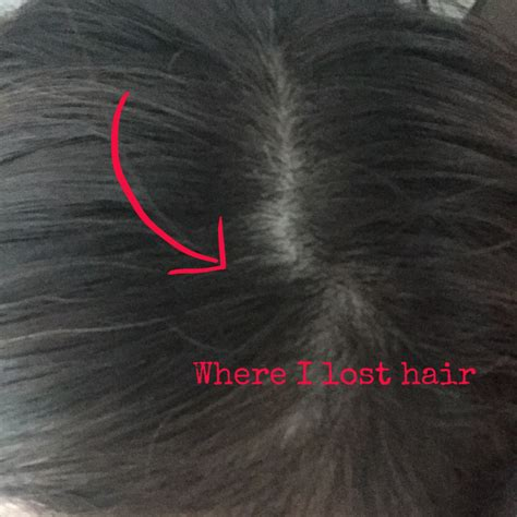 before and after rogaine for women pictures thinning hair no more with rogaine for women