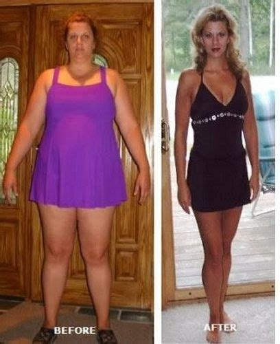weight loss success stories before and after weight loss success story photo