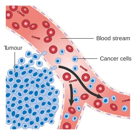 cancer diagram how patients treat stomach cancer with cannabis