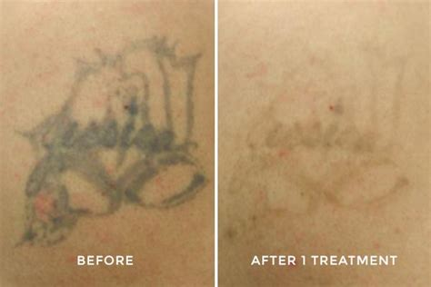 stages of tattoo removal before after photos laser removal
