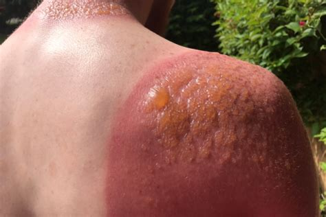 what color does money burn warns of dangers of sun exposure after getting 2nd