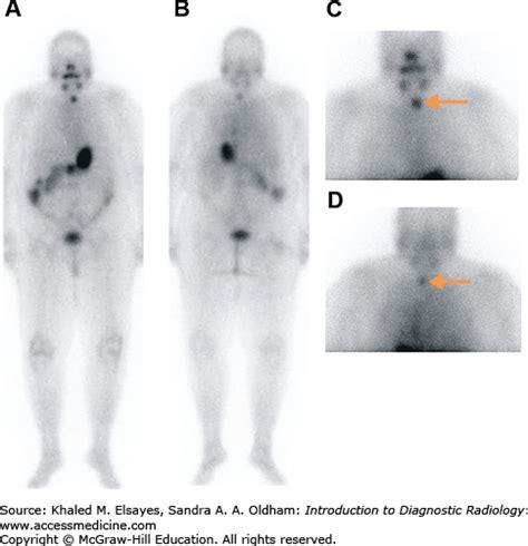 introduction  nuclear medicine radiology key