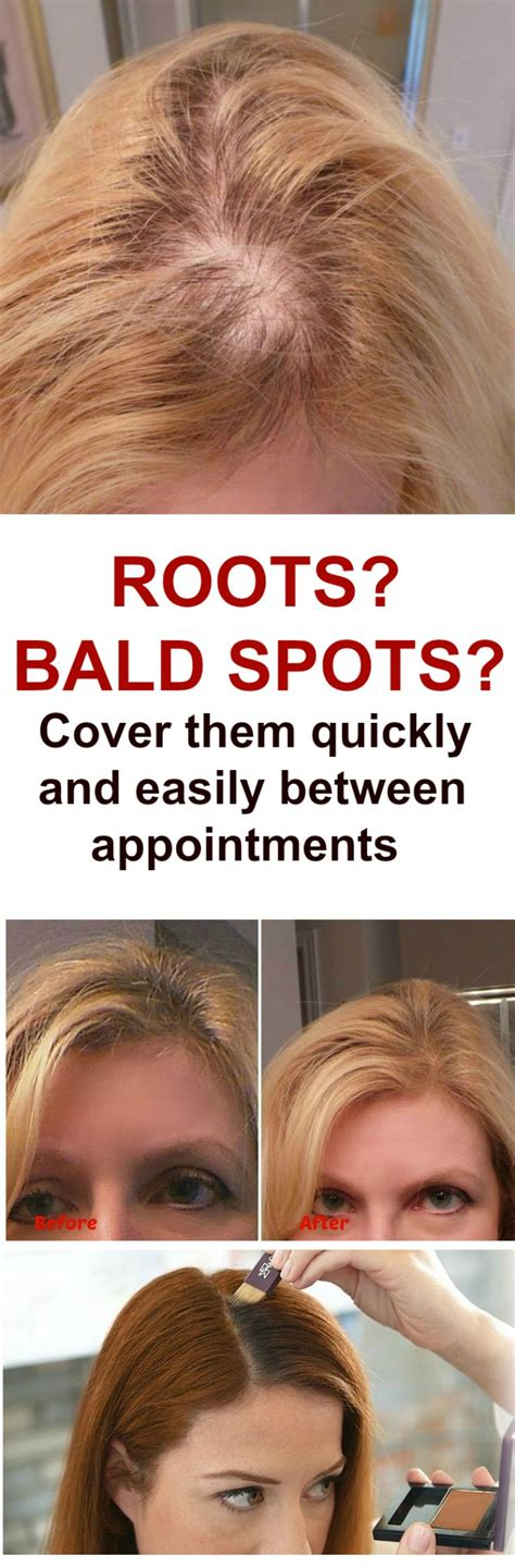 difference between a bald spot and a part 4 tips to conceal your bald spots with suitable hairstyles