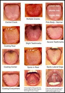tongue diagnosis is another cornerstone of