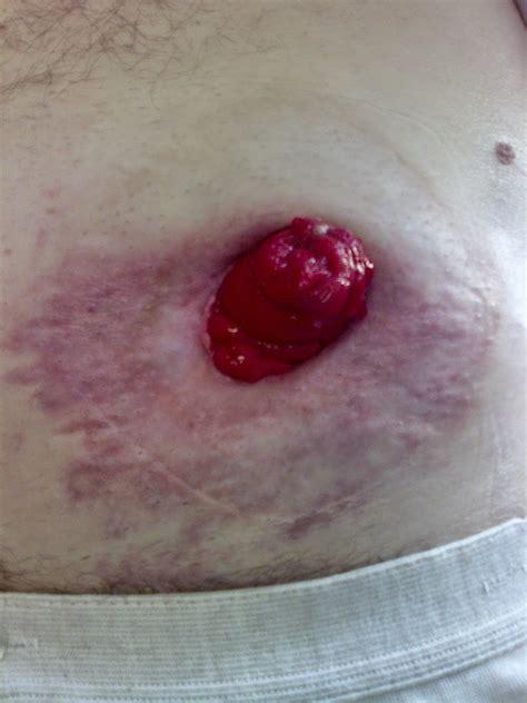 prolasso pavimento pelvico ileostomia temporanea stenosi dello stoma
