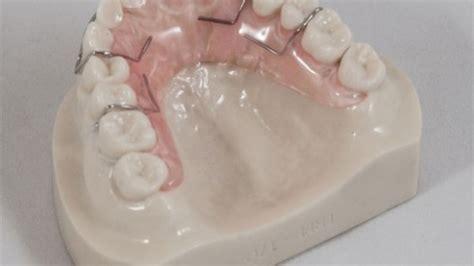 diy dentures uk buy home dental kit partial teeth retainer texarkana usa
