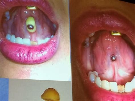 Tongue Piercing Swelling Pictures