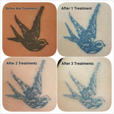 tattoo removal results after one treatment gallery c h laser treatments removal gloucester