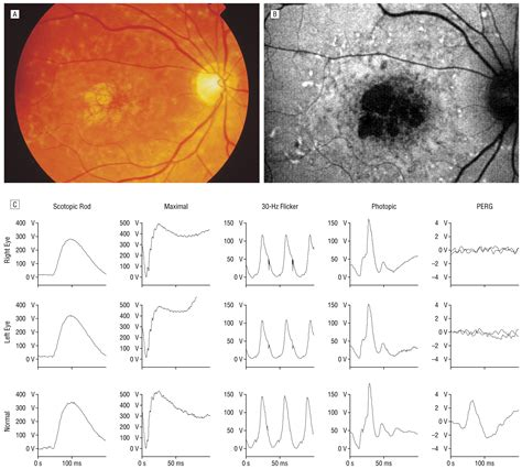pattern dystrophy erg phenotypic subtypes of stargardt macular dystrophy fundus