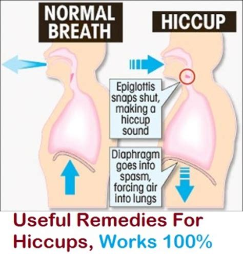 Home Remedies For Hiccups by Useful Remedies For Hiccups That Works 100 Ifai