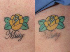 tattoo removal worcester tattoo removal photos worcester ma patient 24377