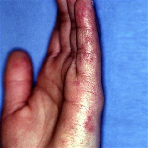 5 health conditions that mimic rheumatoid arthritis everyday health