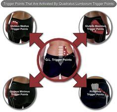 quadratus lumborum management for ql strain recovery strengthening and management books the infraspinatus trigger points referred the