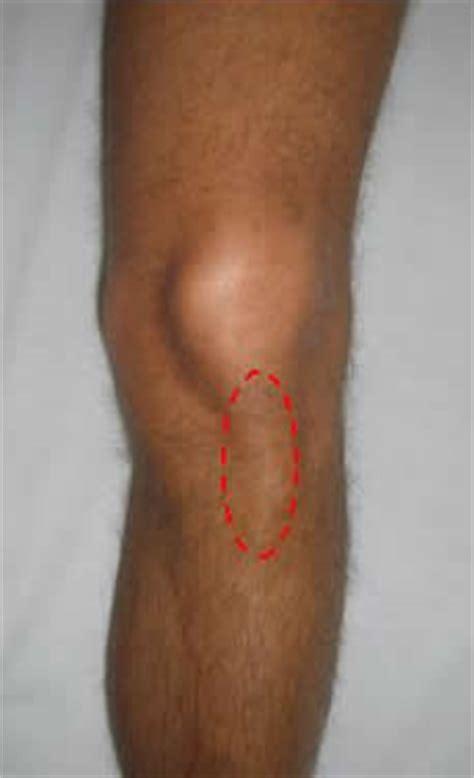 tendinite ginocchio interno tendinite rotulea