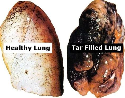 Detox Lungs Fast by Signs Your Needs A Lung Cleanse And How To Do It