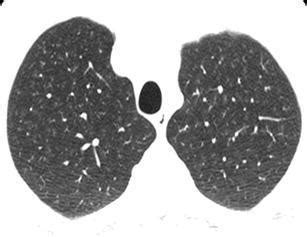 mosaic pattern lung differential diagnosis fig32 mimics in chest disease interstitial opacities open i