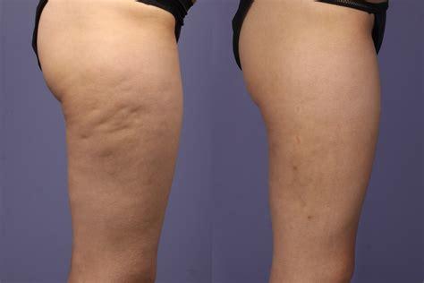 best cellulite remedies best cellulite treatment