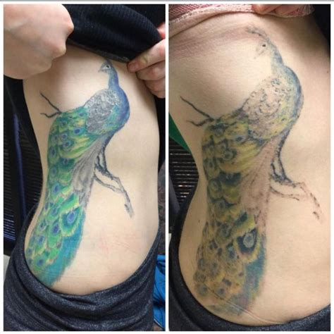 tattoo removal how many sessions 10 best images about before after photos on pinterest