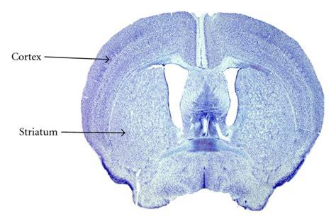 mouse brain coronal section molecular regulation of striatal development a review