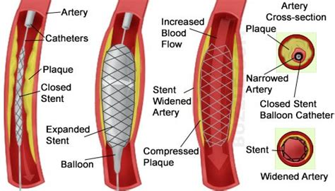 blocked arteries and open surgery angioplasty and stents is it worth undergoing for