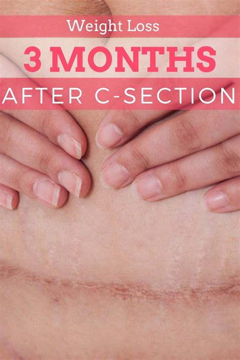5 Months After C Section by Best 20 C Section Belly Ideas On Postpartum