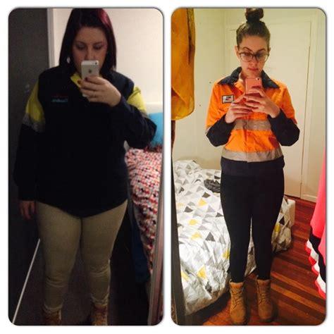 3 weight loss surgeries www lapsurgerybrisbane au weight loss surgery