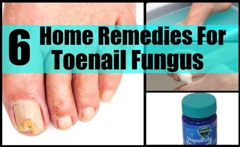 6 home remedies for toenail fungus cure herbal