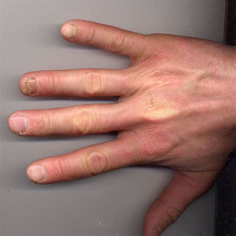 file tiny frog in hand jpg wikimedia commons file onycholysis right hand 34yo male ring and little
