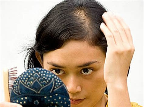hair thinning bangs hair line part 8 things your hair says about your health