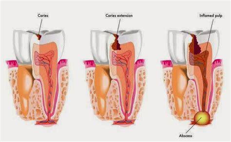Proses Pemutihan Gigi barru wanuaku plak gigi senjata bakteri membuat gigi berlubang